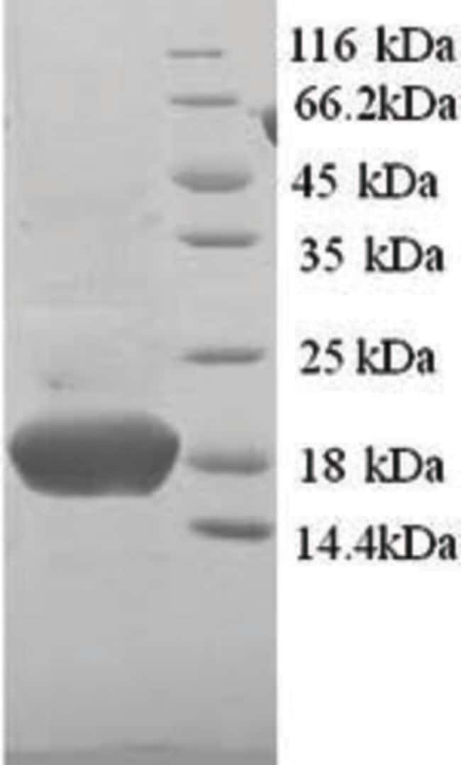 enQuireBio™ Recombinant Human PHPT1 / PHP14 Protein 1mg enQuireBio™ Recombinant Human PHPT1 / PHP14 Protein