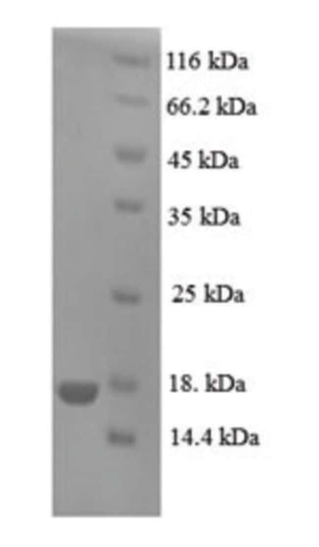 enQuireBio™Recombinant Human Prolactin-inducible Protein 200μg enQuireBio™Recombinant Human Prolactin-inducible Protein