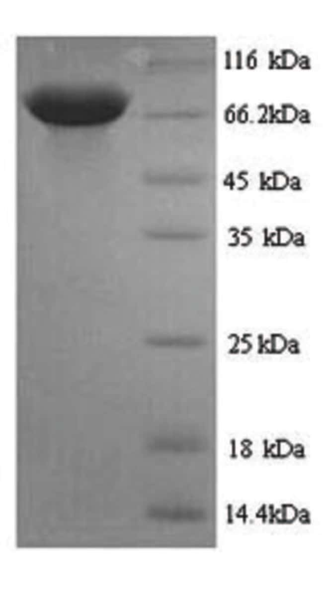 enQuireBio™Recombinant Rat PKLR / PKRL Protein 50μg enQuireBio™Recombinant Rat PKLR / PKRL Protein