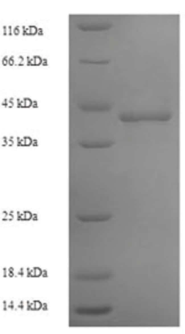 enQuireBio™Recombinant Human DNA-directed RNA polymerase III subunit RPC1 Protein 10μg enQuireBio™Recombinant Human DNA-directed RNA polymerase III subunit RPC1 Protein