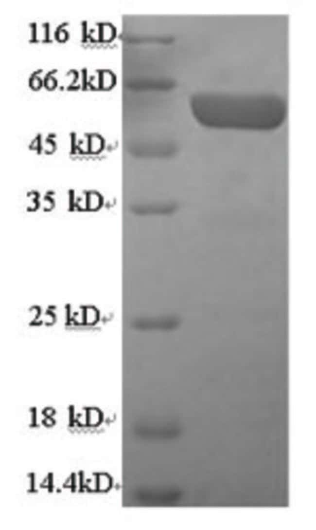 enQuireBio™Recombinant Human Serum paraoxonase / arylesterase 1 Protein 500μg enQuireBio™Recombinant Human Serum paraoxonase / arylesterase 1 Protein