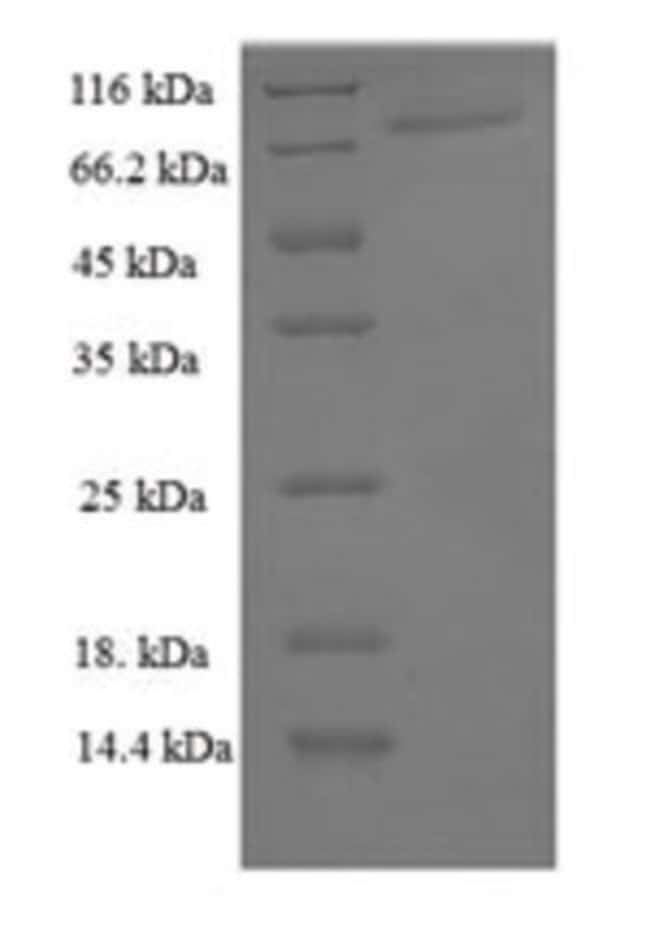 enQuireBio™ Recombinant Human PPARG Protein 100μg enQuireBio™ Recombinant Human PPARG Protein