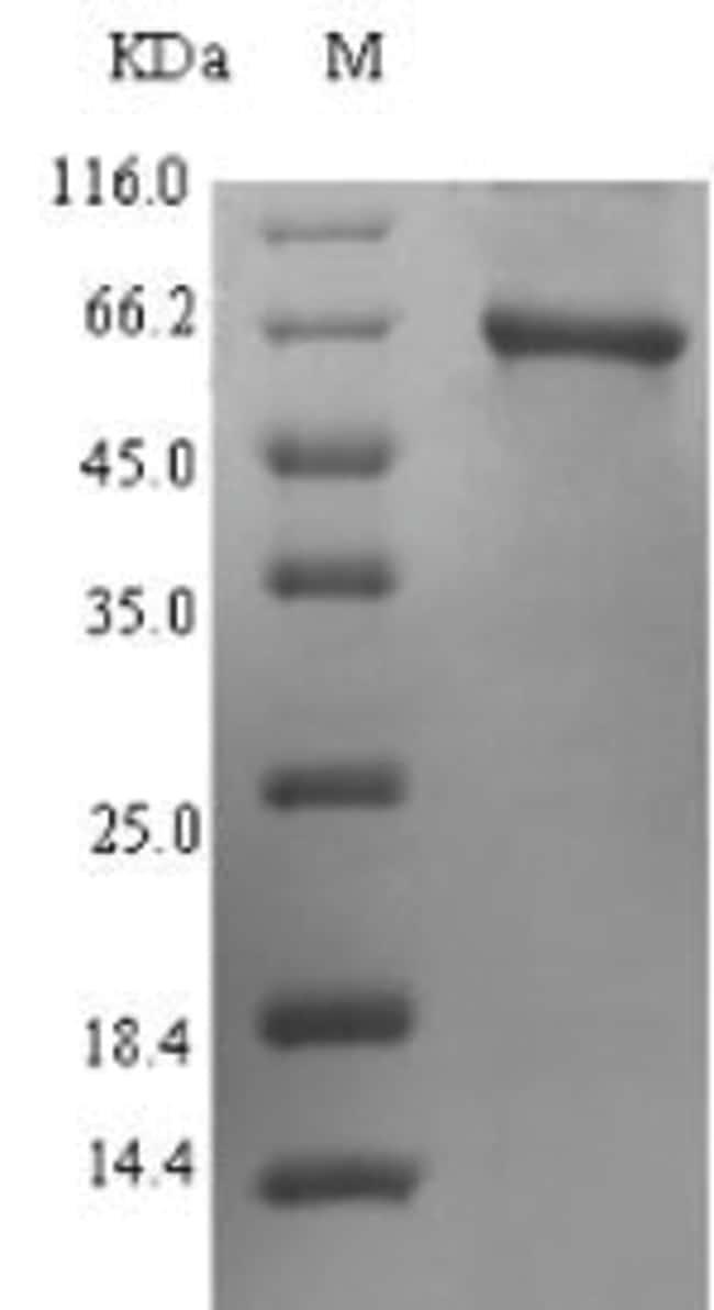enQuireBio™Recombinant Human Protoporphyrinogen oxidase Protein: Proteínas A-Z Proteínas