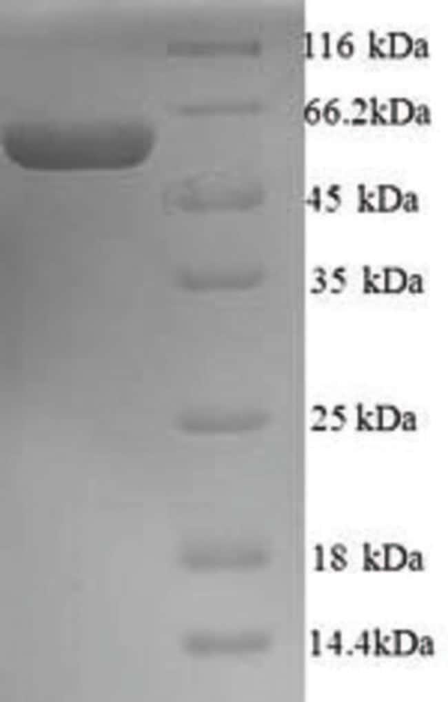 enQuireBio™Recombinant Human PRAME Protein 1mg enQuireBio™Recombinant Human PRAME Protein