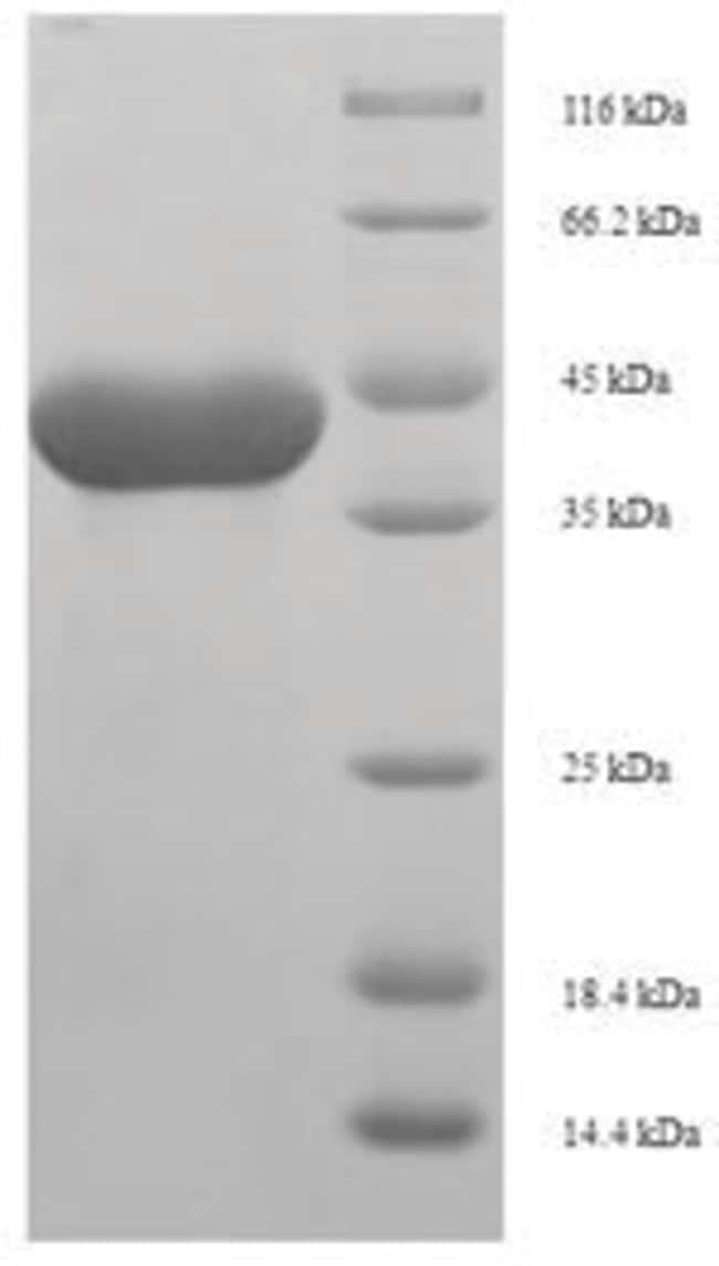 enQuireBio™Recombinant Rat Anionic trypsin-1 Protein 1mg enQuireBio™Recombinant Rat Anionic trypsin-1 Protein