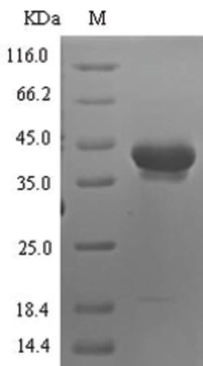 enQuireBio™ Recombinant Human Neurotrypsin Protein 1mg enQuireBio™ Recombinant Human Neurotrypsin Protein