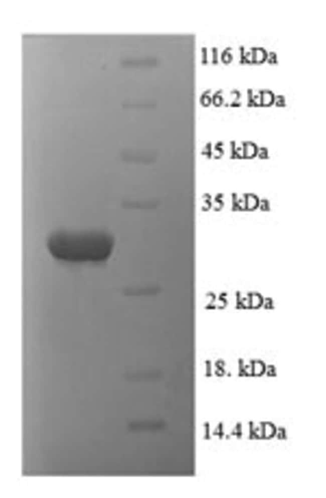 enQuireBio™Recombinant Human Proteasome subunit alpha type-1 Protein 1mg enQuireBio™Recombinant Human Proteasome subunit alpha type-1 Protein