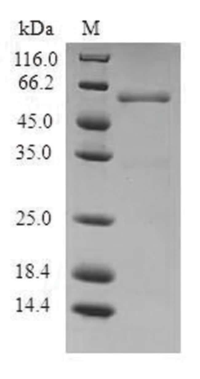 enQuireBio™Recombinant Human PA28A / PSME1 Protein 1mg enQuireBio™Recombinant Human PA28A / PSME1 Protein