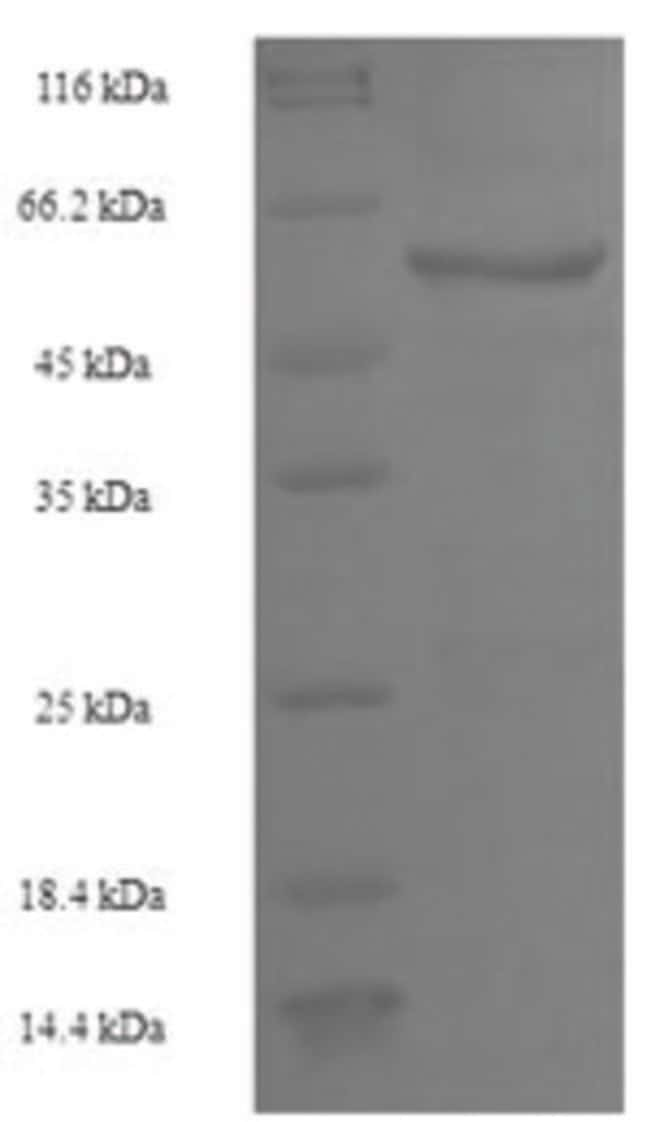 enQuireBio™ Recombinant Human PTPRB Protein 200μg enQuireBio™ Recombinant Human PTPRB Protein