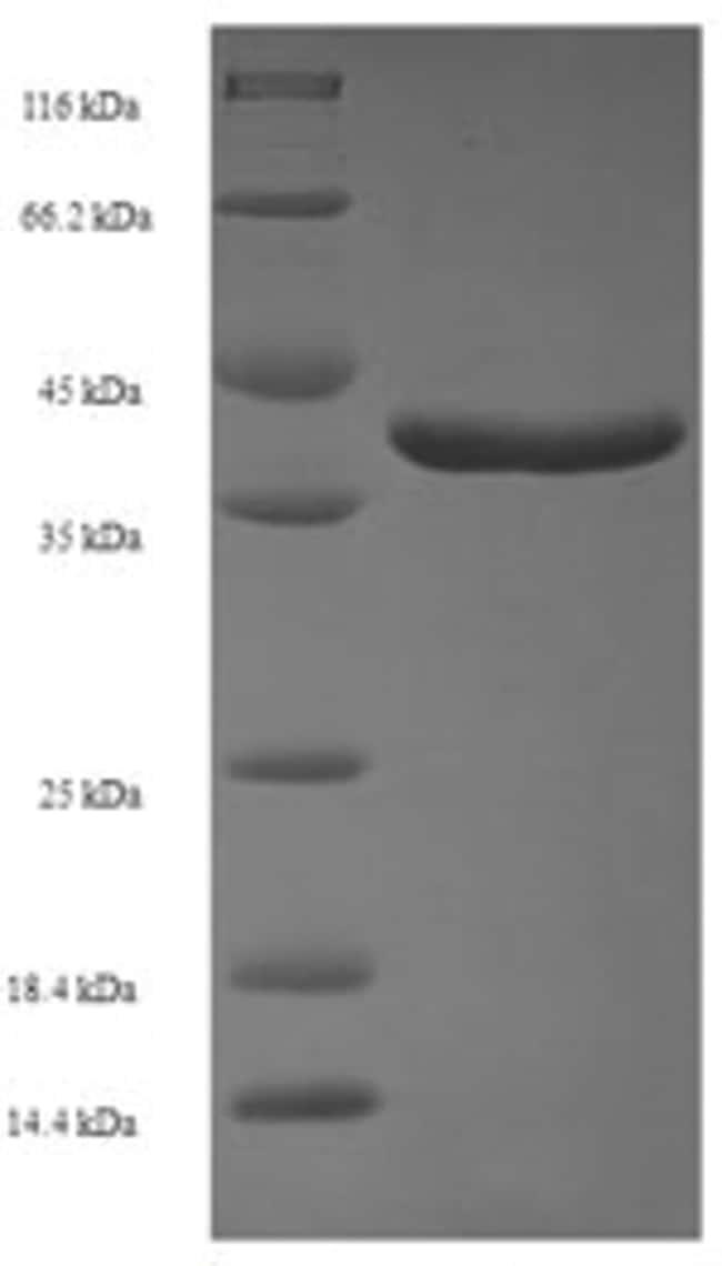 enQuireBio™Recombinant Human Ras-related protein Rab-11A Protein 200μg enQuireBio™Recombinant Human Ras-related protein Rab-11A Protein