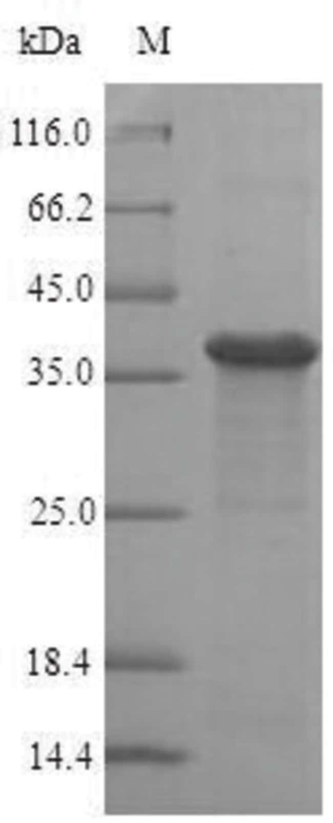 enQuireBio™ Recombinant Human Ras-related protein Rab-8A Protein 1mg enQuireBio™ Recombinant Human Ras-related protein Rab-8A Protein