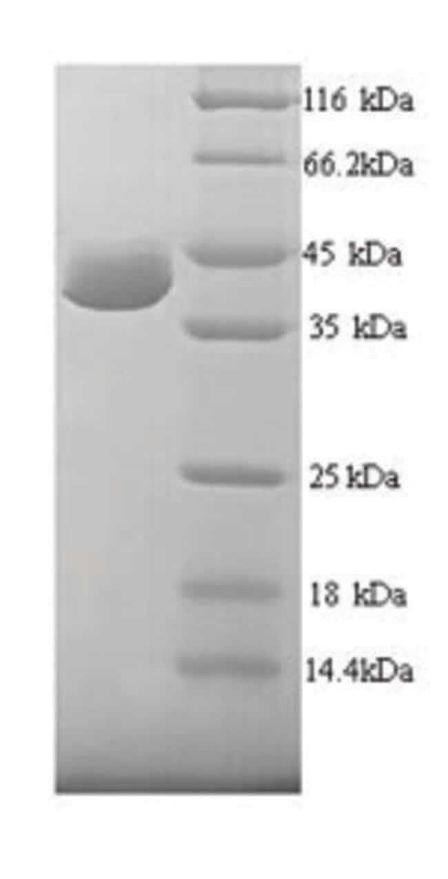 enQuireBio™Recombinant Human UV excision repair protein RAD23 homolog A Protein 1mg enQuireBio™Recombinant Human UV excision repair protein RAD23 homolog A Protein