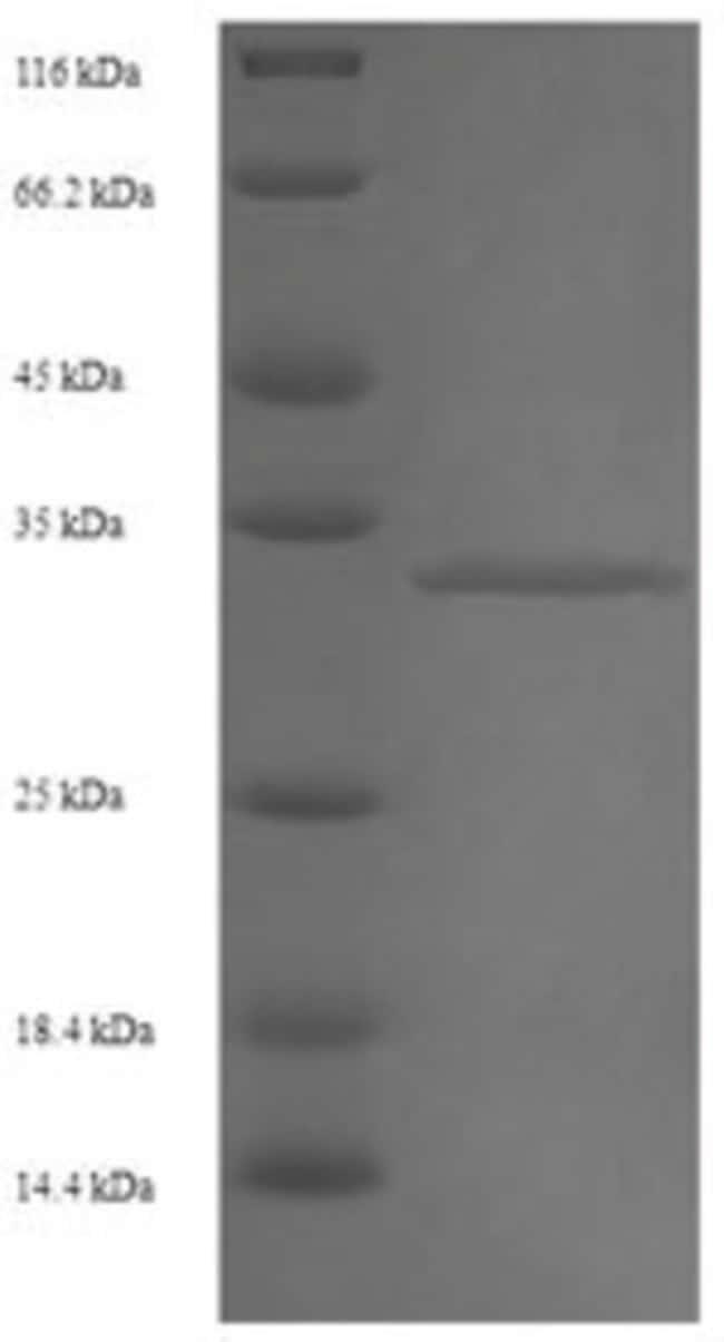 enQuireBio™Recombinant Human RNA-binding protein 1 500μg enQuireBio™Recombinant Human RNA-binding protein 1