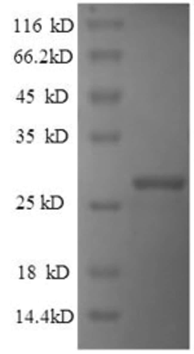 enQuireBio™Recombinant Human Reelin Protein 100μg enQuireBio™Recombinant Human Reelin Protein