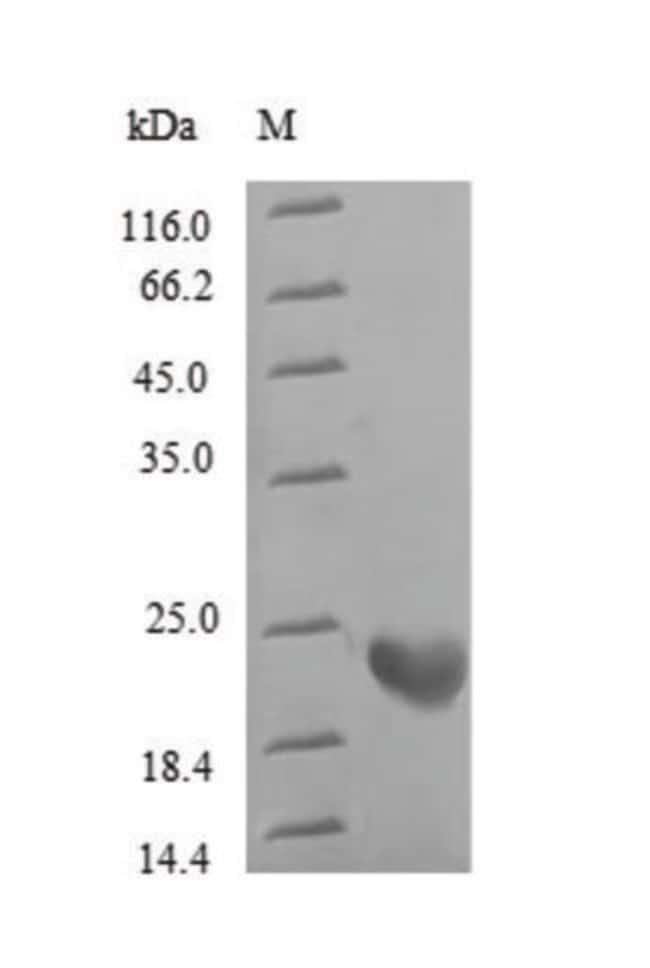 enQuireBio™Recombinant Human Rhodopsin Protein 1mg enQuireBio™Recombinant Human Rhodopsin Protein