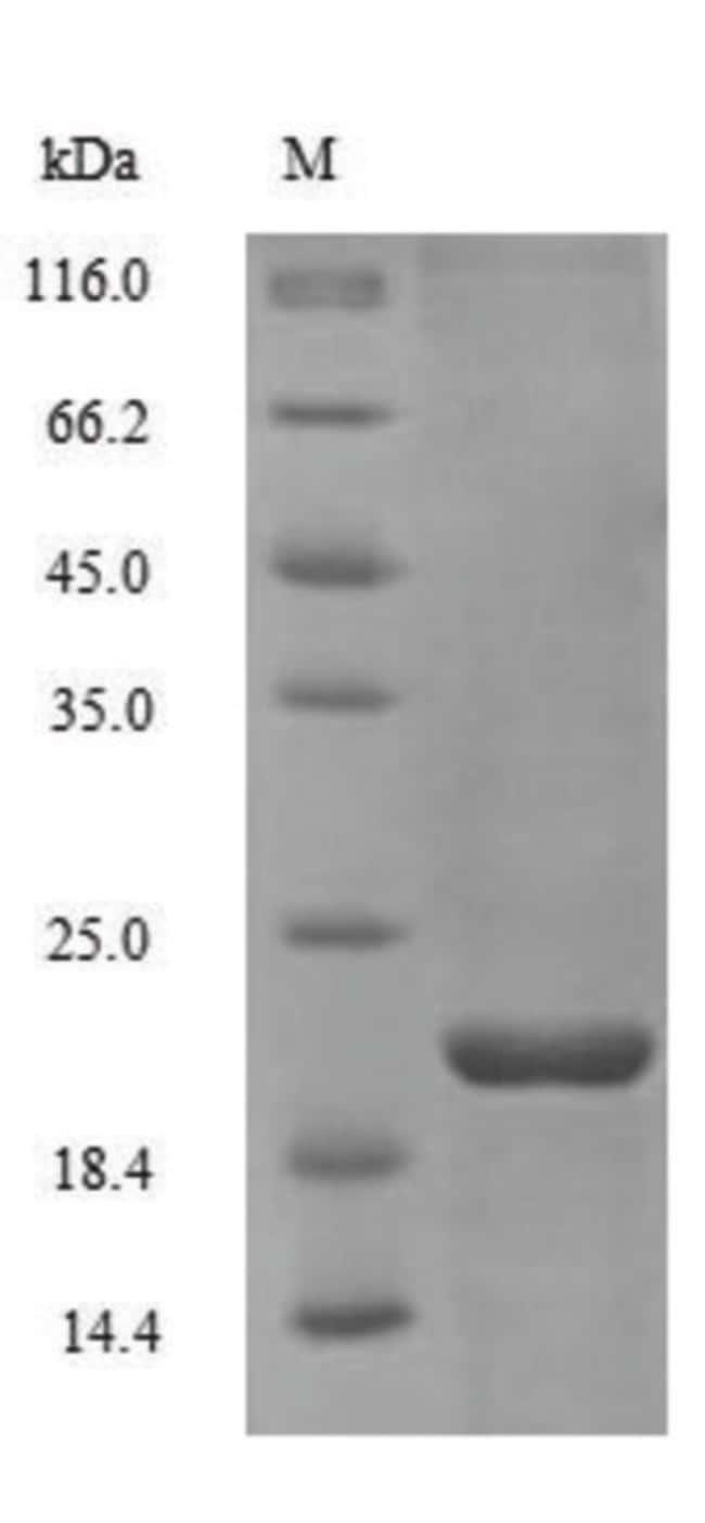 enQuireBio™Recombinant Human Non-secretory ribonuclease Protein 100μg enQuireBio™Recombinant Human Non-secretory ribonuclease Protein