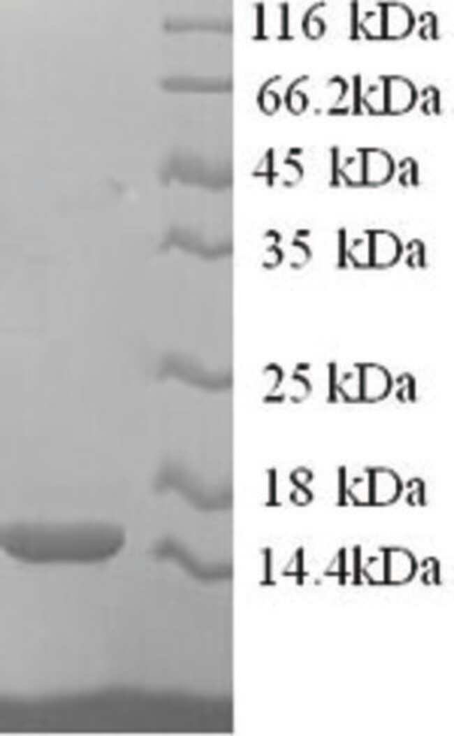 enQuireBio™ Recombinant Human RING-box protein 1 10μg enQuireBio™ Recombinant Human RING-box protein 1