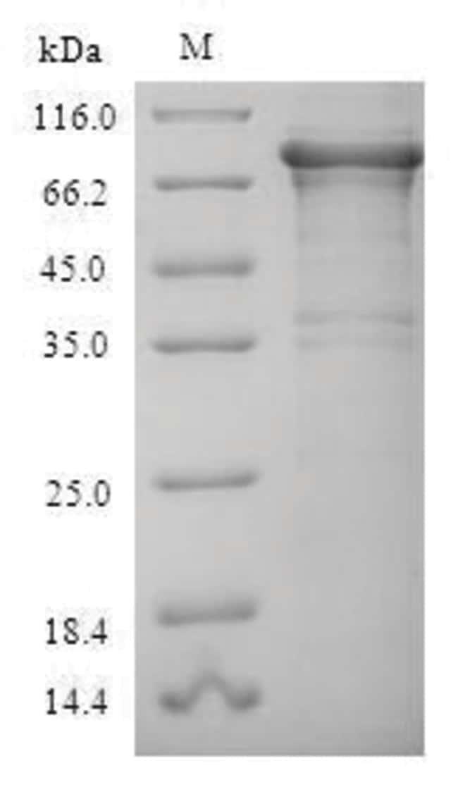 enQuireBio™Recombinant Human RPA1 Protein 500μg enQuireBio™Recombinant Human RPA1 Protein
