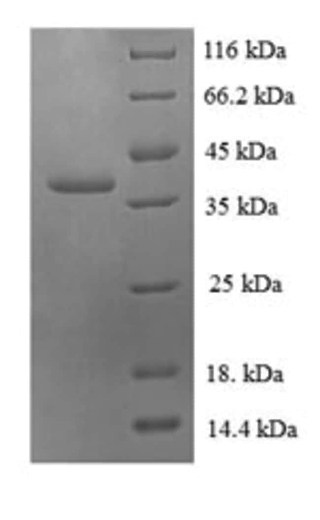 enQuireBio™Recombinant Human 60S ribosomal protein L30 Protein 10μg enQuireBio™Recombinant Human 60S ribosomal protein L30 Protein