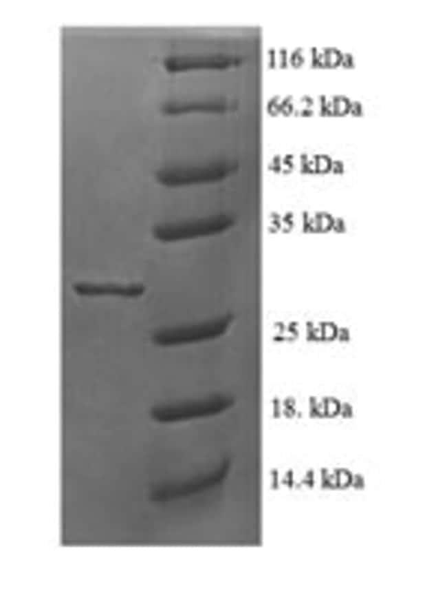enQuireBio™Recombinant Human 60S ribosomal protein L35a Protein 100μg enQuireBio™Recombinant Human 60S ribosomal protein L35a Protein