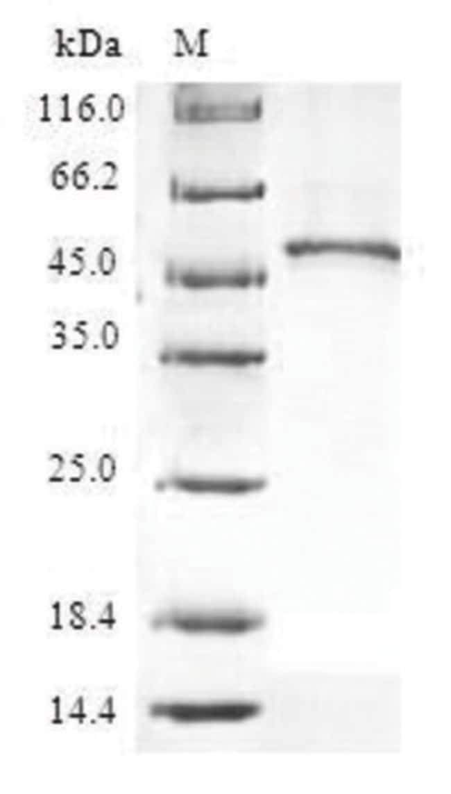 enQuireBio™Recombinant Human 60S ribosomal protein L9 Protein 500μg enQuireBio™Recombinant Human 60S ribosomal protein L9 Protein