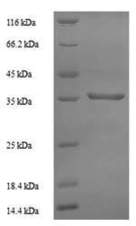 enQuireBio™Recombinant Human 60S acidic ribosomal protein P0 Protein 500μg enQuireBio™Recombinant Human 60S acidic ribosomal protein P0 Protein