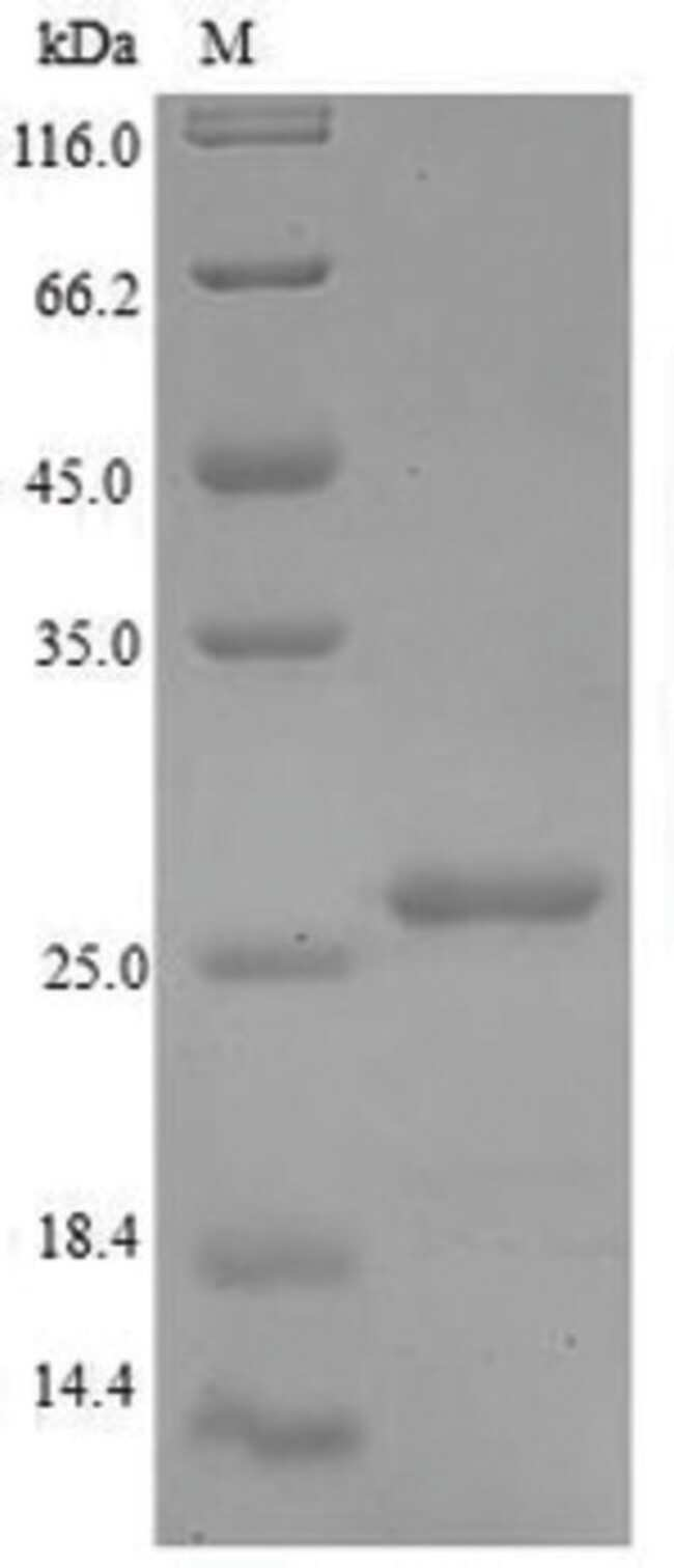 enQuireBio™Recombinant Human 60S acidic ribosomal protein P1 Protein 100μg enQuireBio™Recombinant Human 60S acidic ribosomal protein P1 Protein