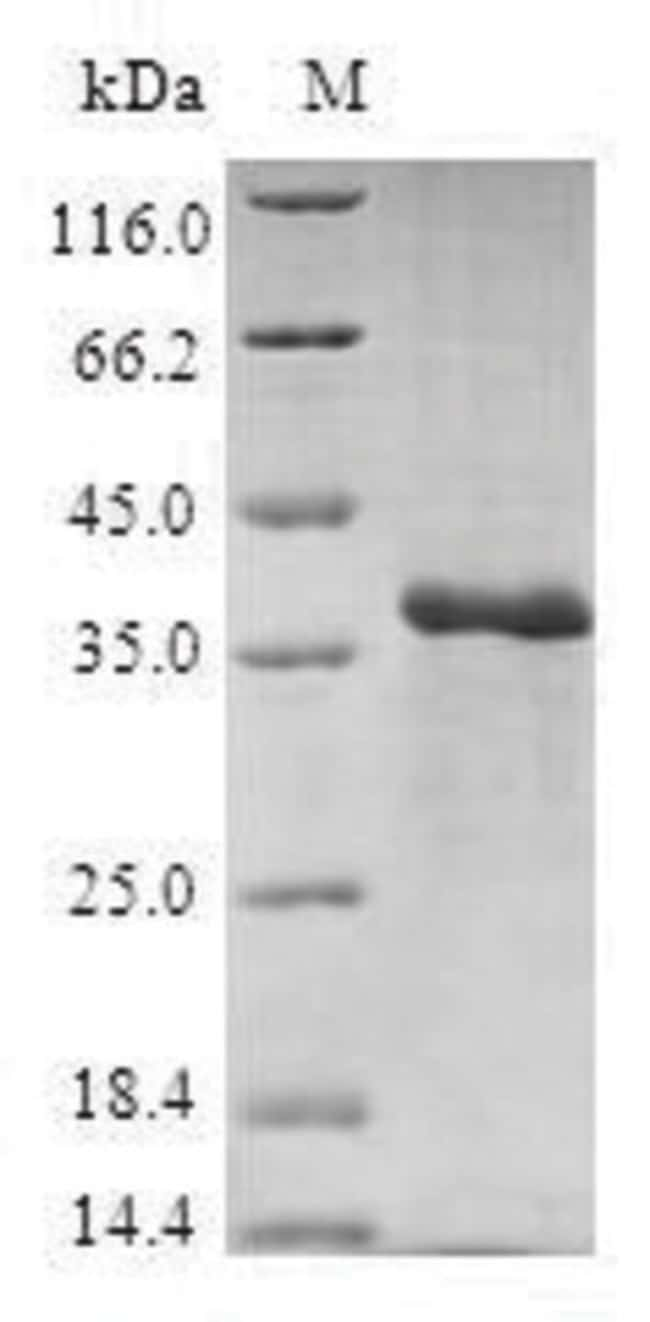 enQuireBio™Recombinant Human 40S ribosomal protein S27 Protein 100μg enQuireBio™Recombinant Human 40S ribosomal protein S27 Protein