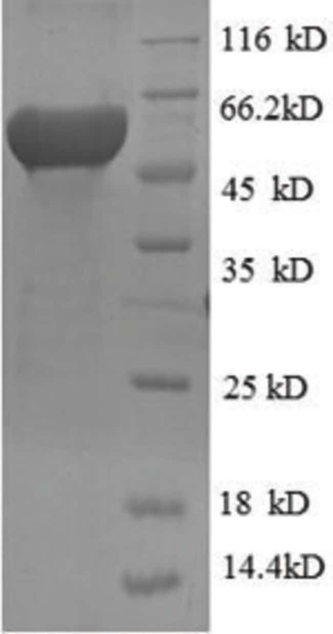 enQuireBio™ Recombinant Human RRM2 Protein 500μg enQuireBio™ Recombinant Human RRM2 Protein