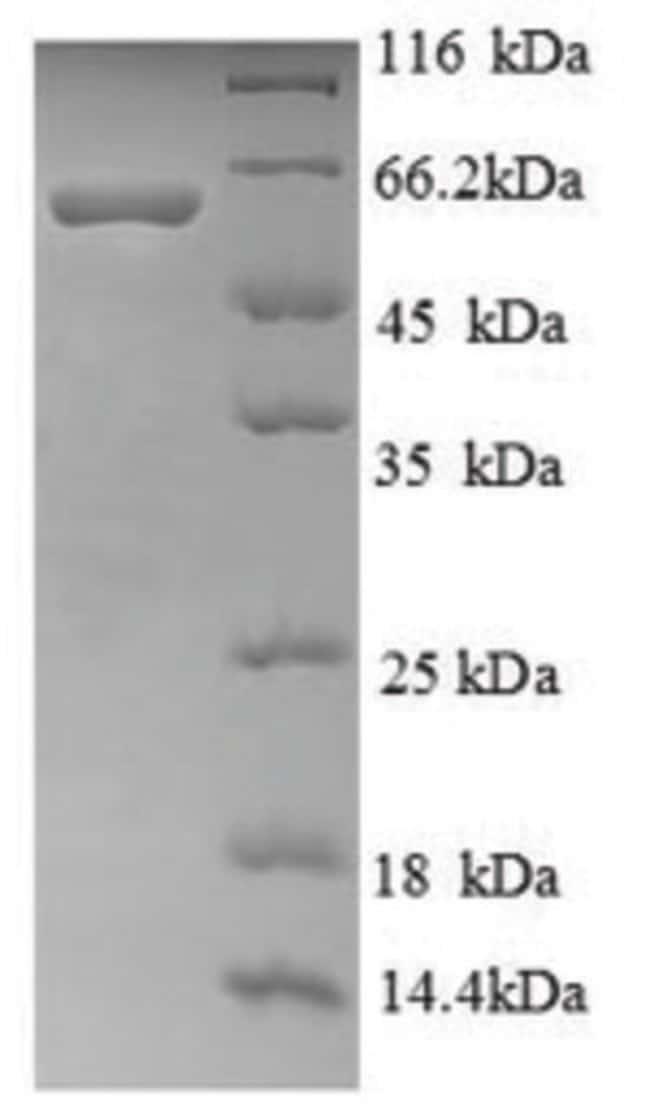 enQuireBio™Recombinant Human Ryanodine receptor 1 Protein 10μg enQuireBio™Recombinant Human Ryanodine receptor 1 Protein