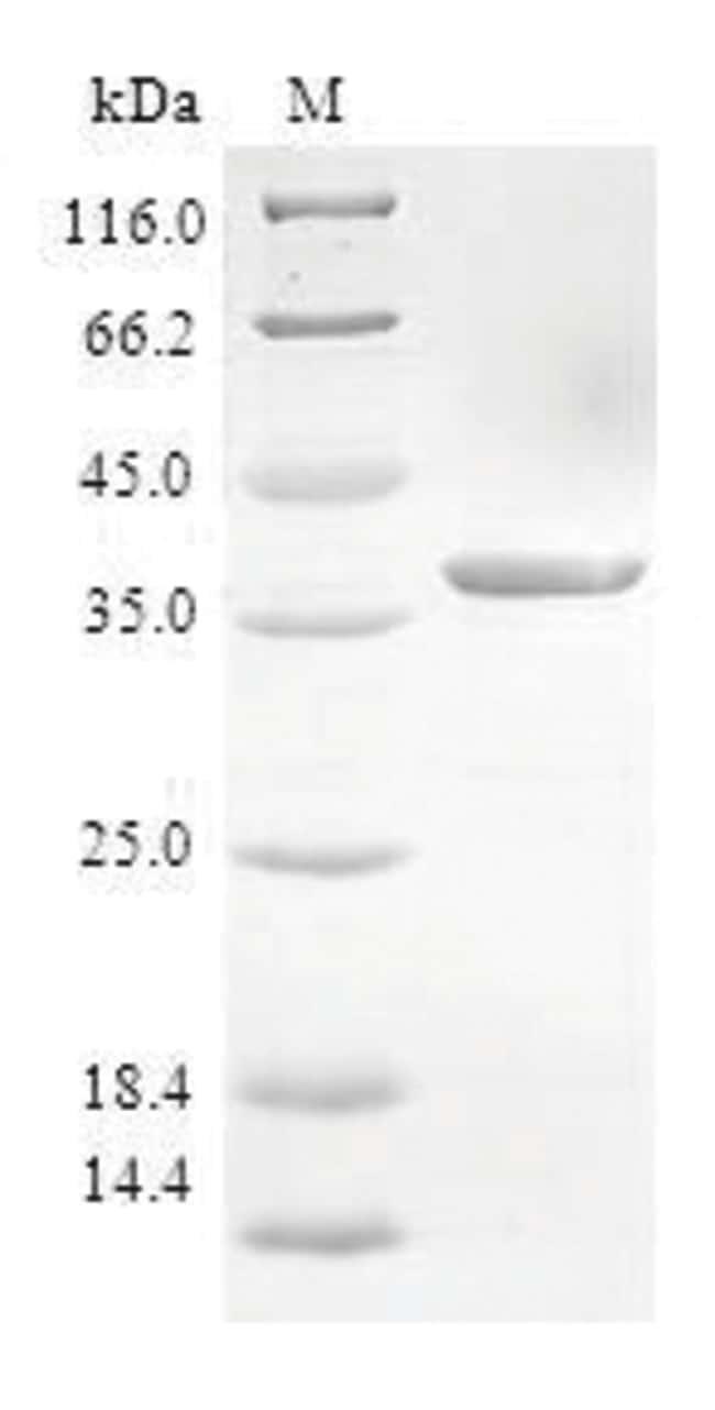 enQuireBio™Recombinant Human S100A3 / S100E Protein 10μg enQuireBio™Recombinant Human S100A3 / S100E Protein