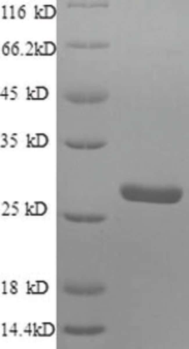 enQuireBio™Recombinant Human S100A4 Protein 100μg enQuireBio™Recombinant Human S100A4 Protein