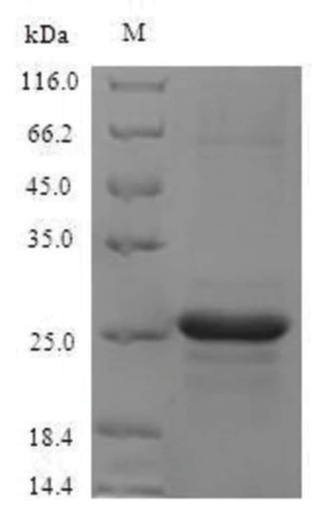 enQuireBio™Recombinant Mouse S100A8 / CAGA Protein 1mg enQuireBio™Recombinant Mouse S100A8 / CAGA Protein