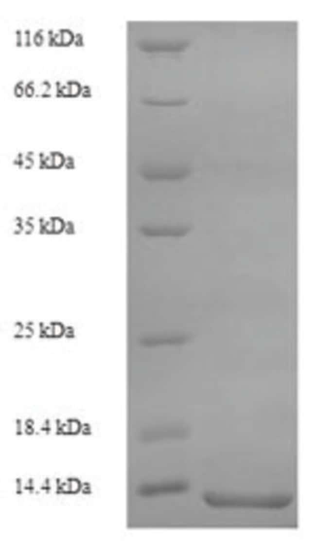 enQuireBio™Recombinant Rat S100A8 / CAGA Protein 1mg enQuireBio™Recombinant Rat S100A8 / CAGA Protein