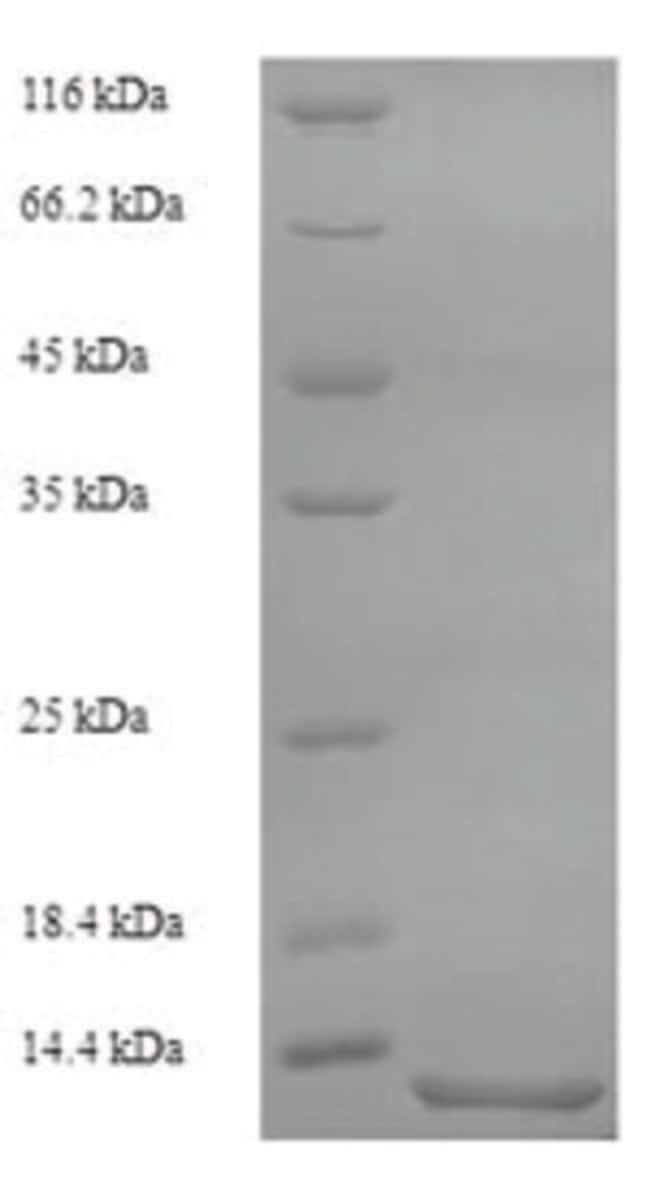 enQuireBio™Recombinant Cat Serum amyloid A Protein 1mg enQuireBio™Recombinant Cat Serum amyloid A Protein