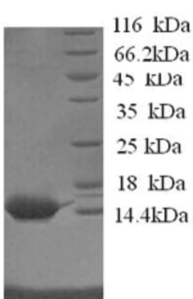 enQuireBio™Recombinant Horse Serum amyloid A Protein 100μg enQuireBio™Recombinant Horse Serum amyloid A Protein