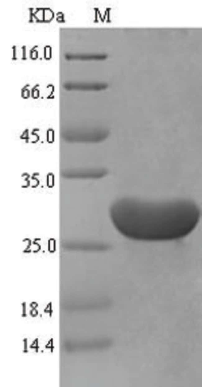 enQuireBio™Recombinant Mouse Serum amyloid A-1 Protein 1mg enQuireBio™Recombinant Mouse Serum amyloid A-1 Protein
