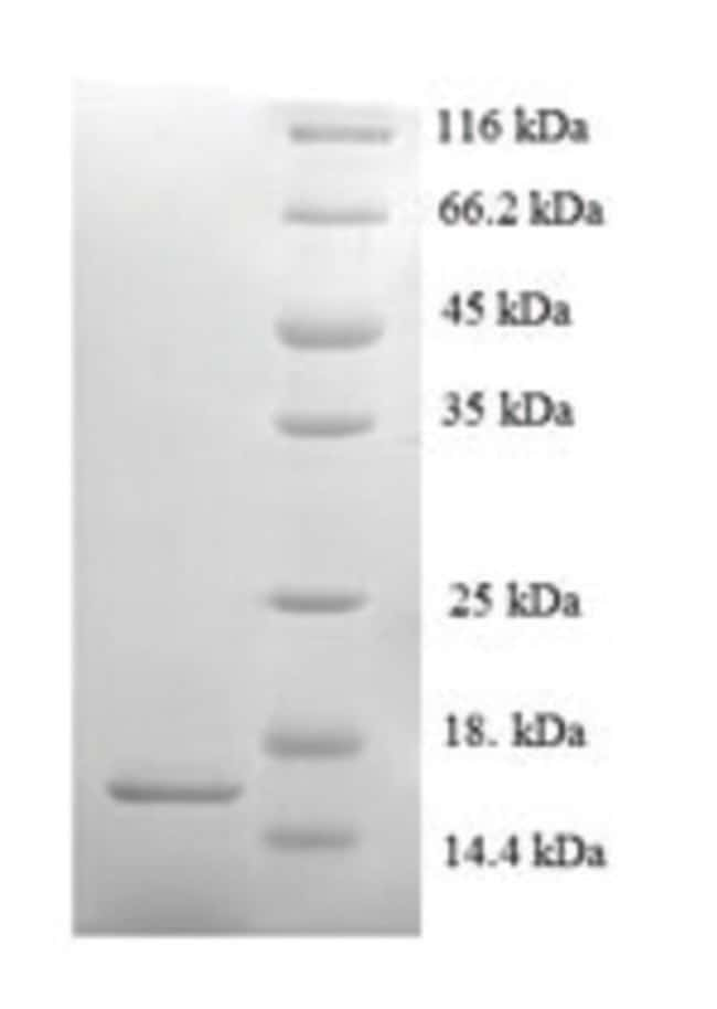 enQuireBio™ Recombinant Mouse Serum amyloid A-2 Protein 1mg enQuireBio™ Recombinant Mouse Serum amyloid A-2 Protein