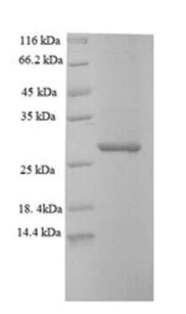 enQuireBio™Recombinant Mouse SAMHD1 Protein 100μg enQuireBio™Recombinant Mouse SAMHD1 Protein