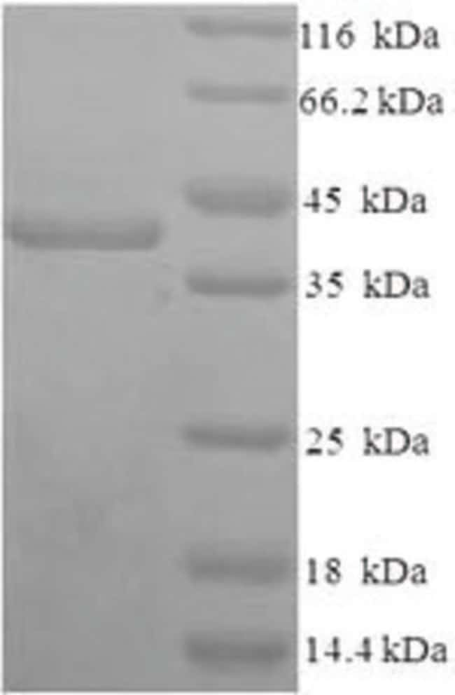 enQuireBio™ Recombinant Human Syndecan-1 / SDC1 / CD138 Protein 50μg enQuireBio™ Recombinant Human Syndecan-1 / SDC1 / CD138 Protein