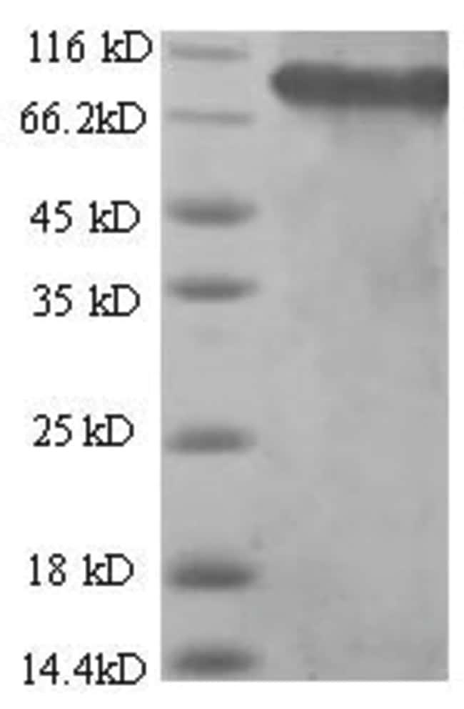 enQuireBio™Recombinant Human SDHA Protein 100μg enQuireBio™Recombinant Human SDHA Protein