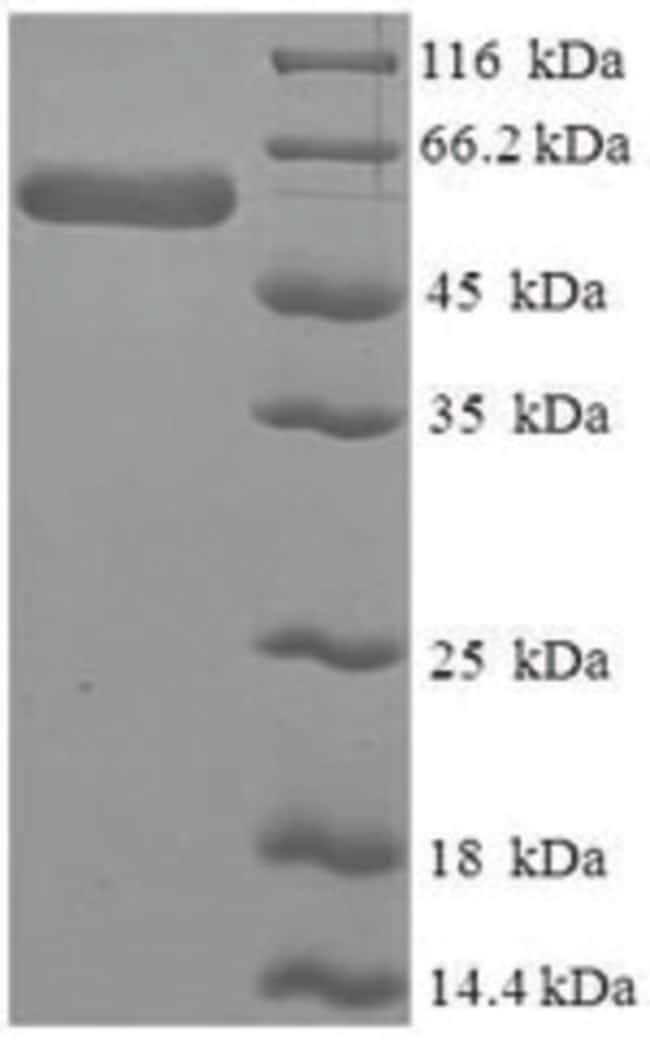 enQuireBio™Recombinant Human SerpinB1 / ELANH2 Protein 1mg enQuireBio™Recombinant Human SerpinB1 / ELANH2 Protein