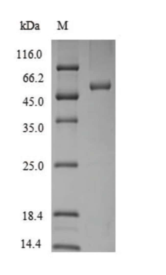 enQuireBio™ Recombinant Rat SerpinB2 / PAI-2 Protein 10μg enQuireBio™ Recombinant Rat SerpinB2 / PAI-2 Protein