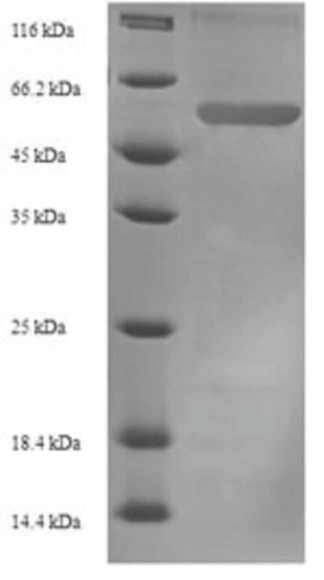 enQuireBio™Recombinant Mouse SerpinE1 / PAI-1 Protein 1mg enQuireBio™Recombinant Mouse SerpinE1 / PAI-1 Protein