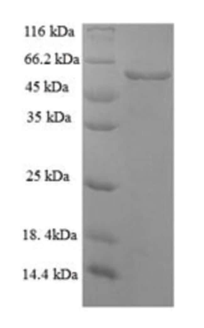 enQuireBio™Recombinant Mouse Serpin H1 Protein 10μg enQuireBio™Recombinant Mouse Serpin H1 Protein