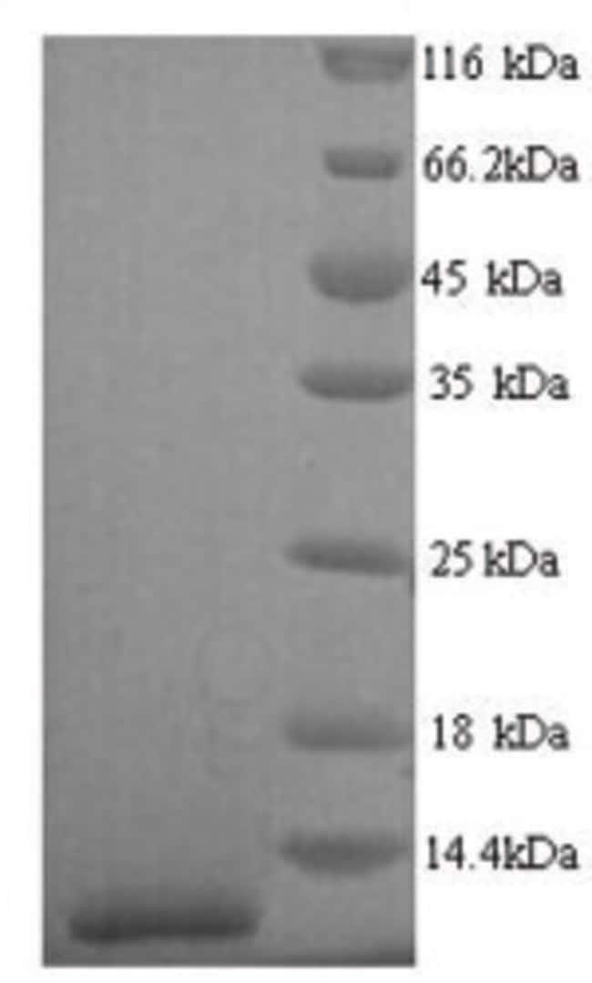 enQuireBio™Recombinant Human Pulmonary surfactant-associated protein 1 200μg enQuireBio™Recombinant Human Pulmonary surfactant-associated protein 1