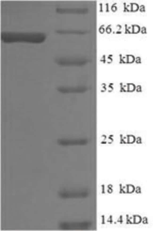 enQuireBio™Recombinant Human gp100 / PMEL17 / SILV Protein 200μg enQuireBio™Recombinant Human gp100 / PMEL17 / SILV Protein
