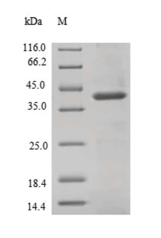 enQuireBio™Recombinant Human Signal-regulatory protein beta-1 Protein 100μg enQuireBio™Recombinant Human Signal-regulatory protein beta-1 Protein
