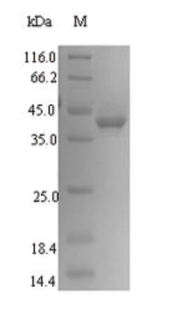 enQuireBio™Recombinant Human SIRPG / SIRP gamma / CD172g Protein 50μg enQuireBio™Recombinant Human SIRPG / SIRP gamma / CD172g Protein