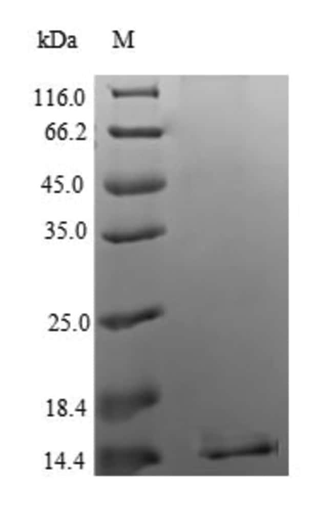 enQuireBio™Recombinant Human Apoptosis regulatory protein Siva Protein 1mg enQuireBio™Recombinant Human Apoptosis regulatory protein Siva Protein